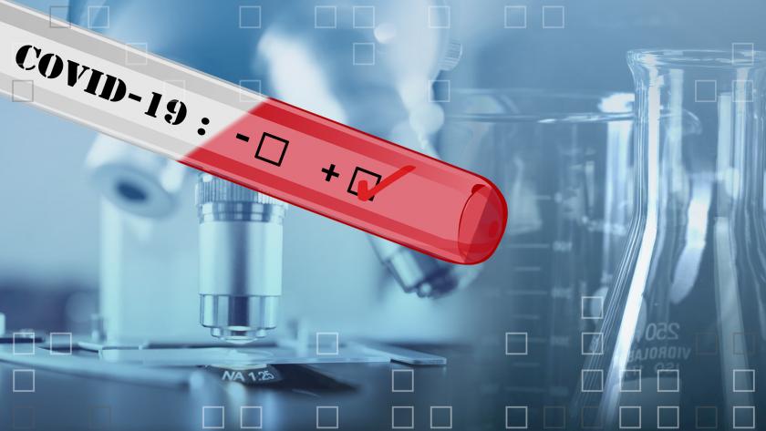 прокуратурата иска информация контрола използването бързите тестове
