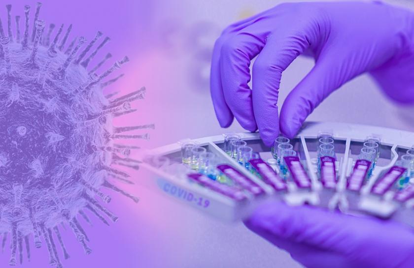 155 са новите случаи на коронавирус в страната