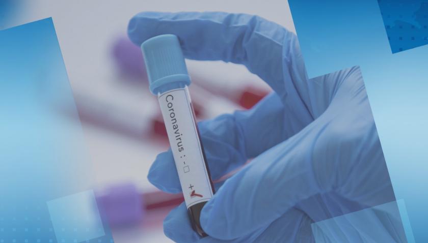 Близо 25% от изследваните през последното денонощие са с COVID-19
