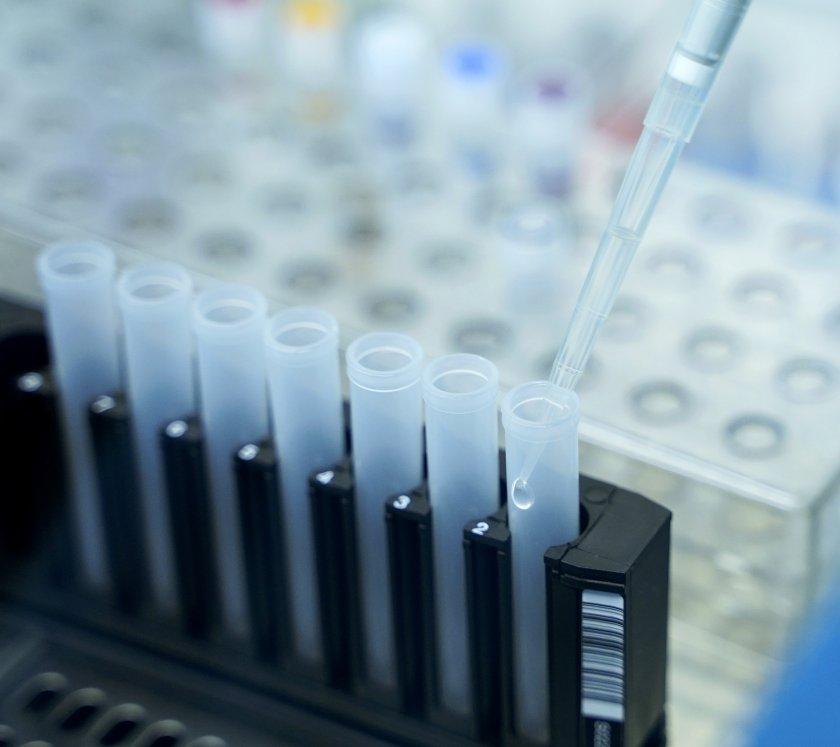 81 случая на коронавирус, половин процент са положителните проби