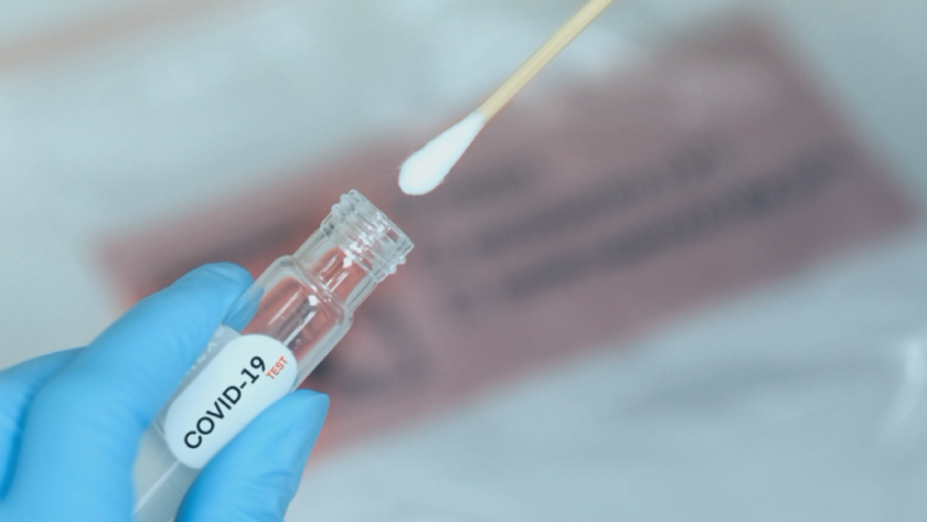 35 нови случая на коронавирус за последното денонощие