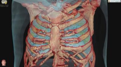 Хората с наднормено тегло са рискова група да заболеят от COVID-19