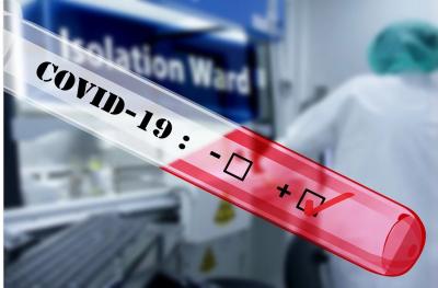 Русия стана втората страна след САЩ по брой заразени с COVID-19