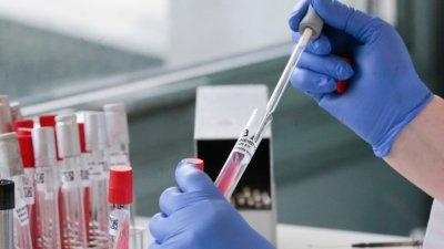 Ръст на заразени с коронавирус в Пловдивско - 13 нови случая