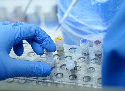 211 случая на Covid-19 при 2800 PCR теста