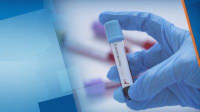 53 случая на коронавирус при 1275 PCR теста