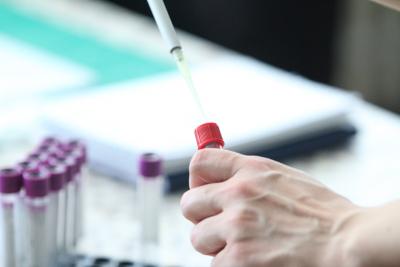 32 случая на коронавирус при 781 теста