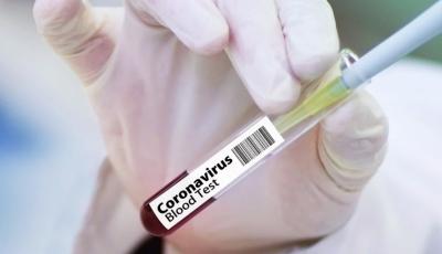 154 са новите случаи на коронавирус в страната