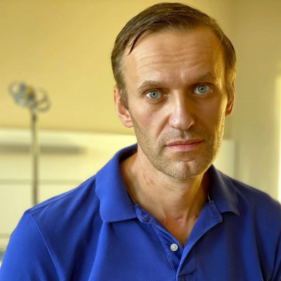 Навални след изписването: Бях ужасно разстроен, когато се видях в огледалото