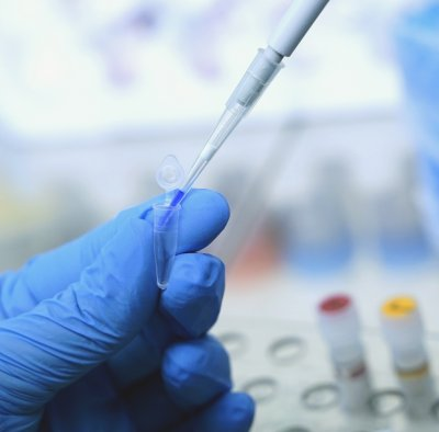 160 са новите случаи на коронавирус у нас, 12 са починали