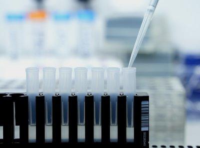 448 случая на коронавирус при 3795 теста