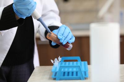 418 случая на коронавирус, положителни са 9% от пробите