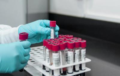 631 са новите случаи на коронавирус у нас