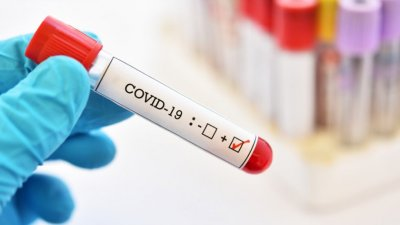 877 са новите случаи на коронавирус, намалява броят на хоспитализираните с COVID-19