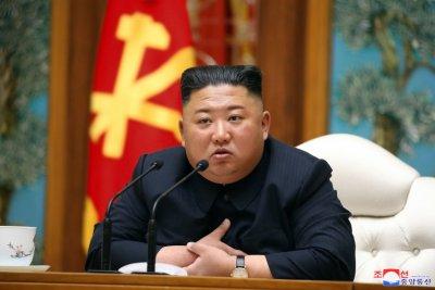 Притеснение около здравето на Ким Чен Ун
