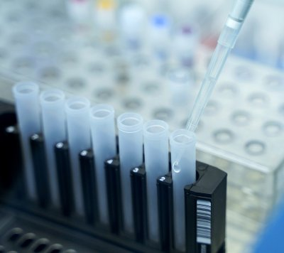 55 са новите случаи на коронавирус
