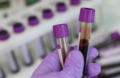 513 нови случая на коронавирус за последното денонощие