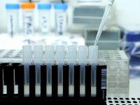 4 нови случая на Covid-19 бяха доказани в Националната референтна лаборатория