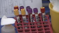 Излекувани от COVID-19 даряват кръвна плазма