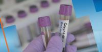 161 нови случаи на COVID-19 у нас за последното денонощие