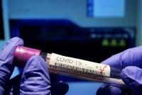 Черна гора отново обяви епидемия от COVID-19