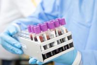 Нов рекорд на заразени с COVID-19 - 1336 нови случая, при направени 11 505 теста