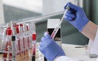 Ако сме имали контакт с болен: Кога трябва да си направим PCR тест?