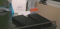 1000 безплатни антигенни теста са осигурени от Община Дупница