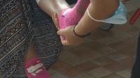 За първи път в България: Смениха бедрена кост и две стави на дете с тумор