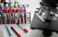 1246 са новите случаи на коронавирус за денонощие у нас